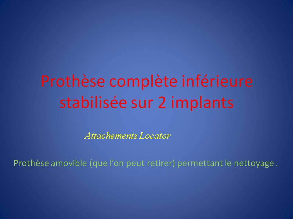 implants_Locator-1
