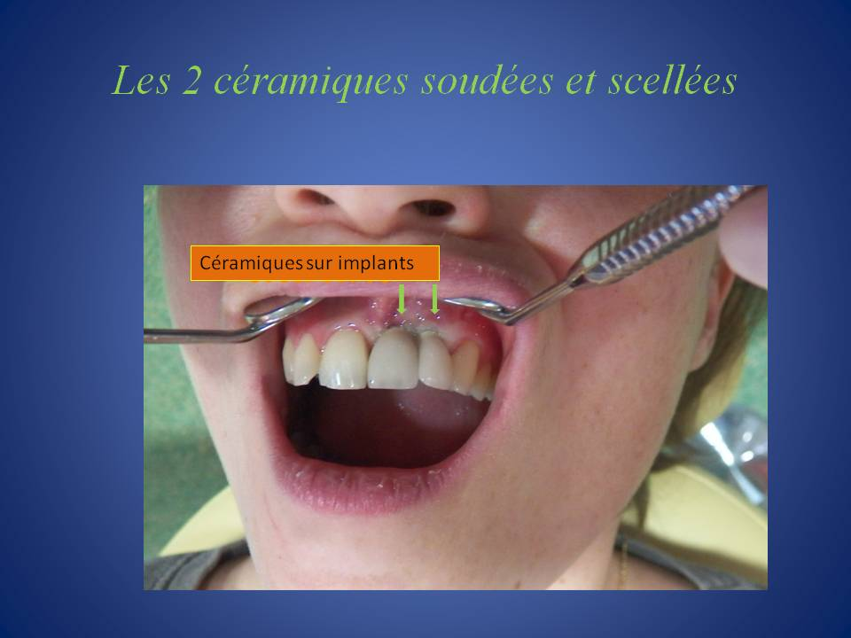 Couronnes_fixes_scellees-7