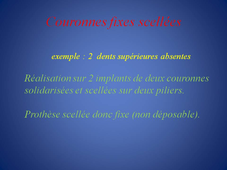 Couronnes_fixes_scellees-1