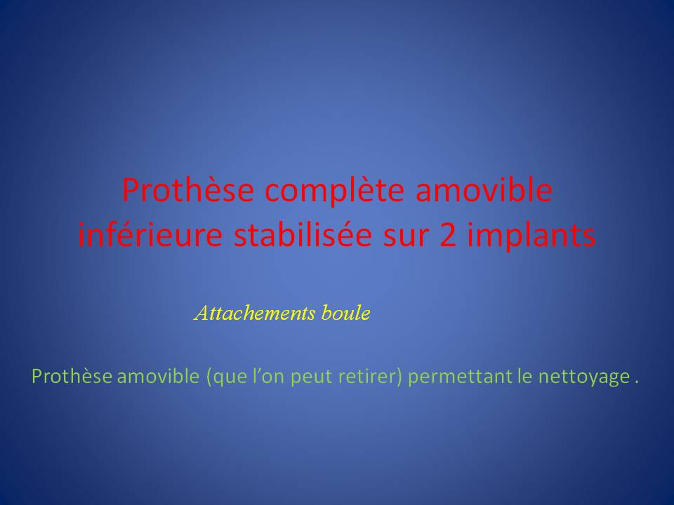 Prothese-complete-amovible-boule-1